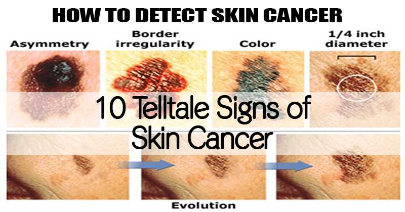 10 Telltale Signs Of Skin Cancer. Cancer Center Treatment Centers Of America. Massachusetts Bankruptcy Attorney. Culinary Vacations In The Us D C Plumber. T Mobile Online Chat Support. Junk Removal San Francisco Company Car Sales. Tutoring Programs For Elementary Students. Data Visualization Library Cyber Security 101. Self Storage Houston Tx Free Com Domain Name