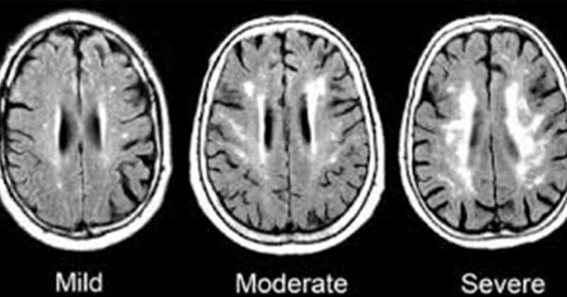 Omega3, CoQ10, Ginkgo: Science Confirms These Promising Treatments Can Help Rapid Brain Deterioration