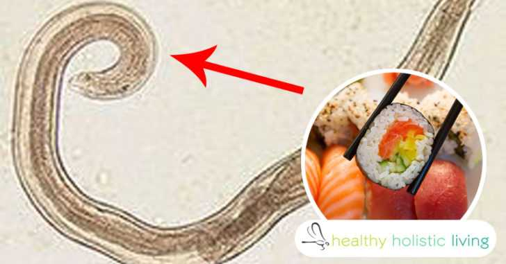 7 Early Warning Signs You Have A Worm In Your Brain From Eating Sushi