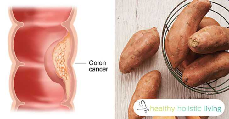 Study: 80% of the Protein in Sweet Potatoes Kills Several Types of Cancer Cells