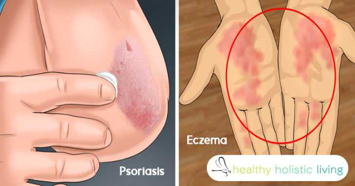 The difference between eczema and psoriasis + how to treat them