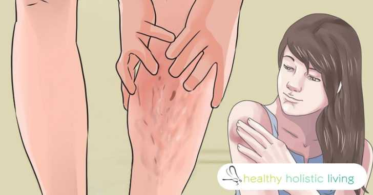 symptoms and treatments for blood disorders