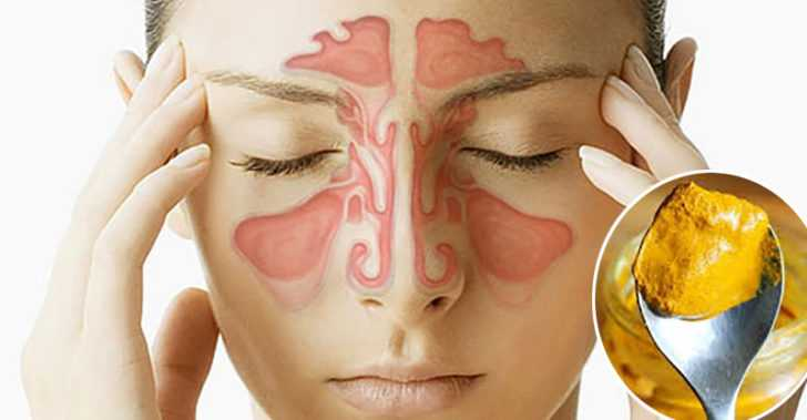 Turmeric And Salt Water an Effective Way to Quickly Relieve Sinus Infections in Minutes