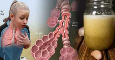 Juice Raw Garlic Once a Week and This Can Happen to Your Lungs, Skin, and Cholesterol