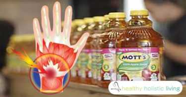 apple juice inflammation