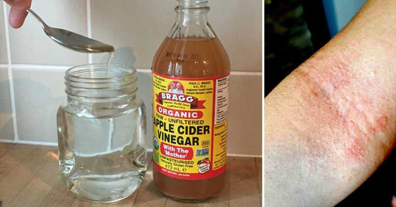 How You Can Use ACV to Effectively Relieve Eczema - and What Not to Do!