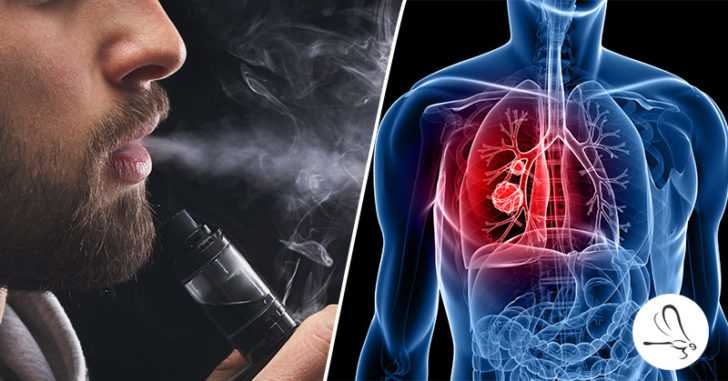 Major New Warning for People Using E-Cigarettes