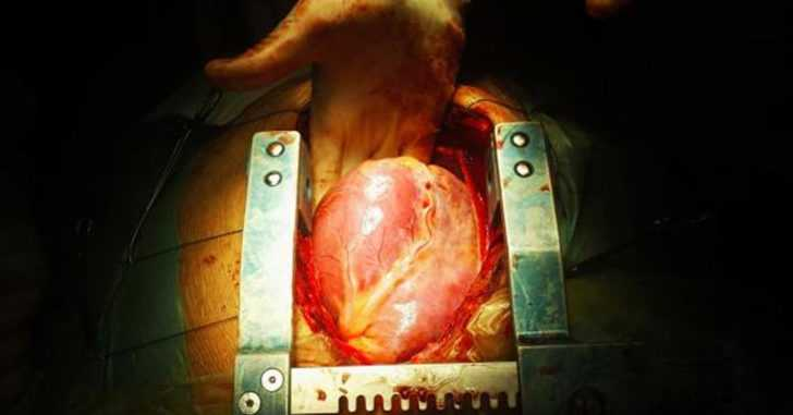 Heart Surgeon Speaks Out About the True Cause of Heart Disease