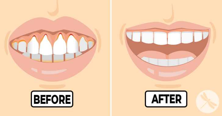 If You Have Receding or Unhealthy Gums, Here Are Proven Solutions