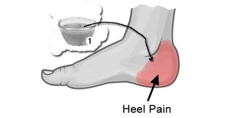 How to Get Relief from Heel Pain Naturally