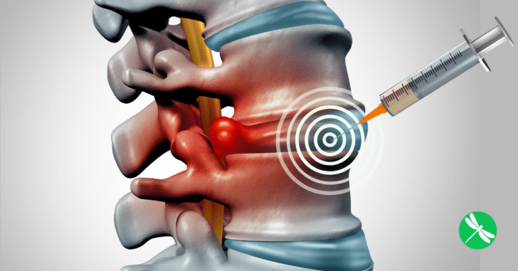 FDA Warns About Dangers Of Epidural Steroid Injections For Back Pain