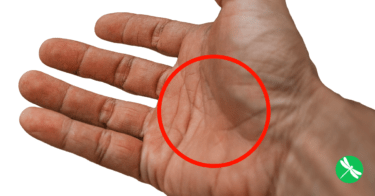 The Mystery Behind the Letter X On Your Palms Revealed!